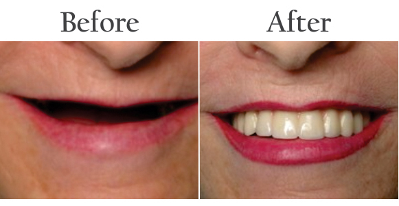 cosmetic dentistry services in delhi, gurgaon