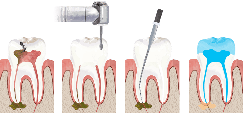 painless root canal treatment in gurgaon